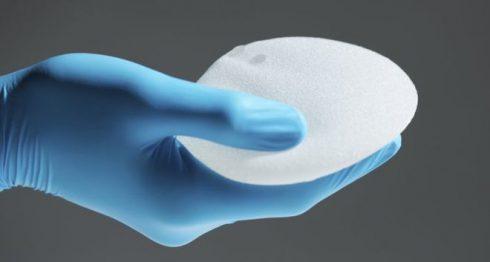 El Linfoma Anaplásico de Células Grandes asociado a implantes de mama es un tipo de cáncer raro. GETTY IMAGES