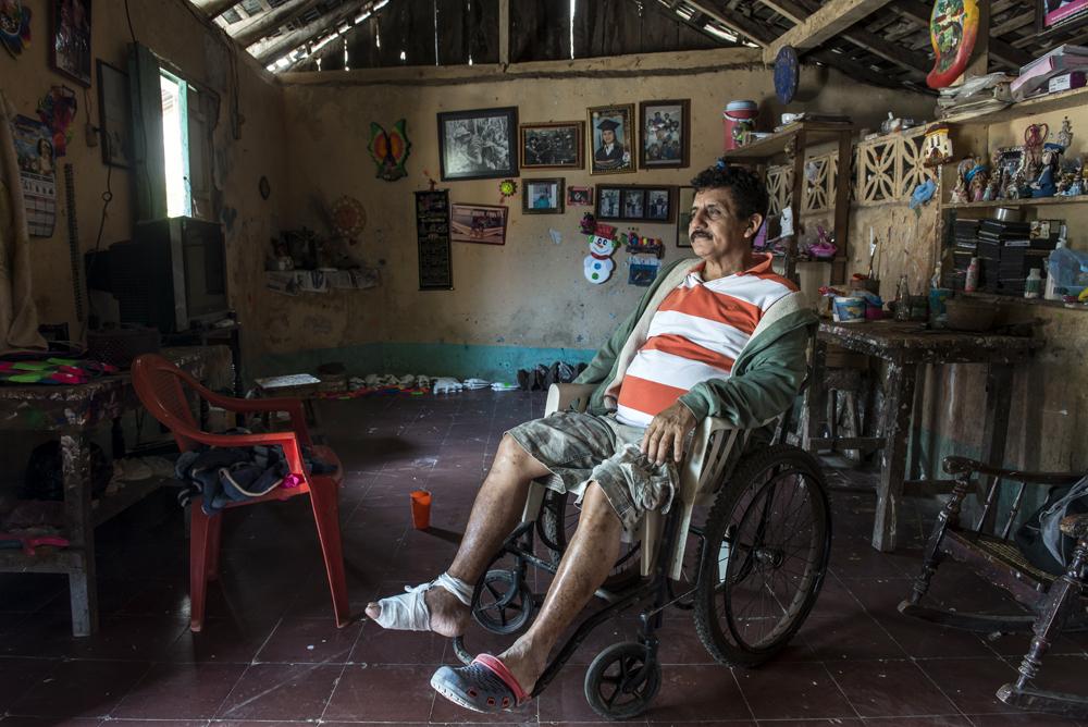 Alberto Bracamontes, ex Cachorro del BLI Santos López, sufre hoy de diabetes y hace poco le amputaron dos dedos del pie. Foto: Óscar Navarrete / La Prensa.