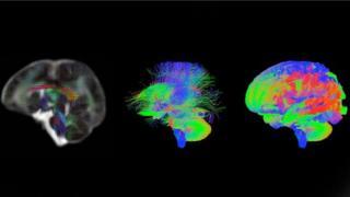 cerebro de los bebés
