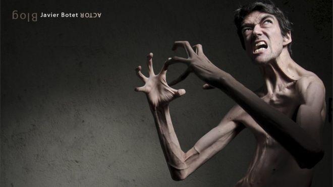 síndrome de Marfan,